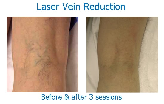 Results of spider vein treatment with laser