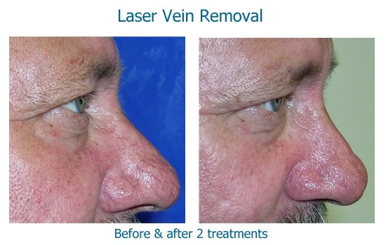 closeup of side of nose before and after laser vein reduction