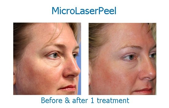 micro laser peel results eyes