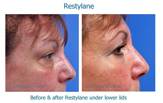 Before and after Restylane to treat eye bags