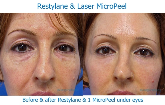 before and after photos of the results of Restylane and a Micro Laser Peel at Skinspirations