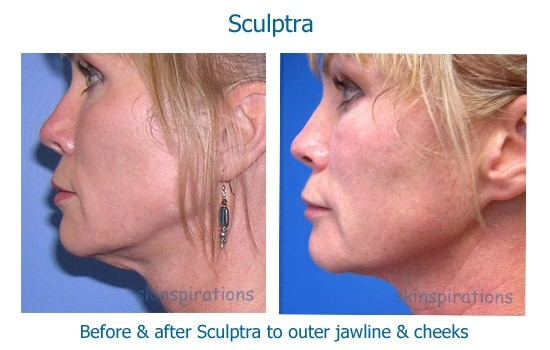Before and after dermal fillers to tighten neck