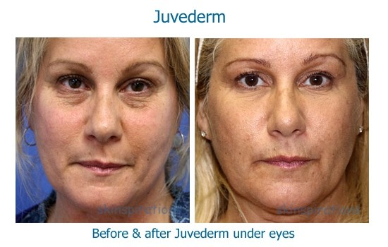 Before and after Juvederm to treat dark circles under eyes
