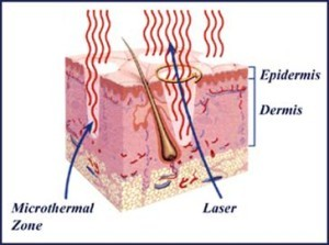 Cross section of the skin showing effects of fractionated lasers