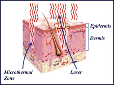 Cross-section of skin showing effects of fractionated laser