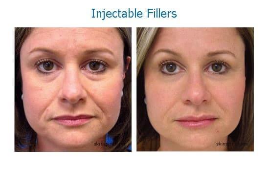 Dark circles under eyes treated with dermal filler