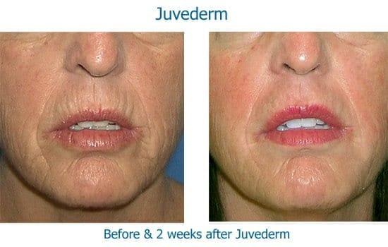 Before and after dermal filler to lip wrinkles