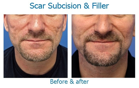Before and after scar subcision with dermal filler