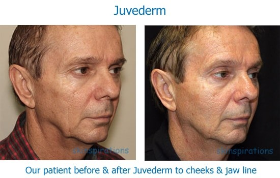 Man before and after dermal filler to cheeks and jawline