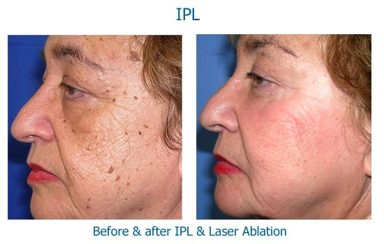 before and after IPL and laser removal of brown spots at skinspirations