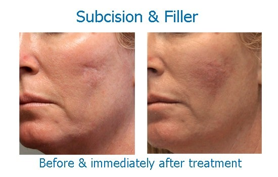 before and after scar subcision at skinspirations