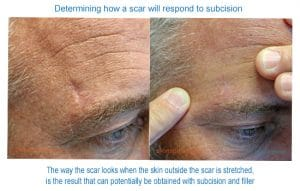 Scars that look smooth when pulled to sides, do best with subcision vs. laser