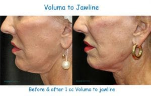 before and after photographs of a woman's facial side views, illustrating the appearance of a tighter neck after adding volume to the jaw