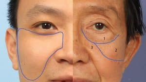 Facial ligaments drawn onto photo of face