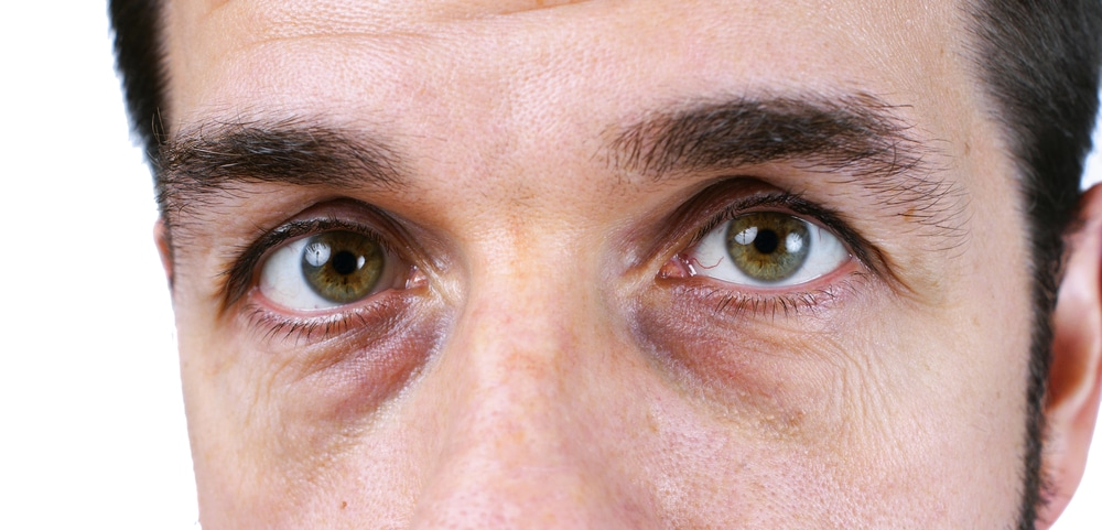 closeup of man's eyes with bags and circles