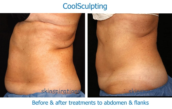 My CoolSculpting Experience