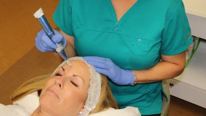 What to Expect from a Microneedling Treatment