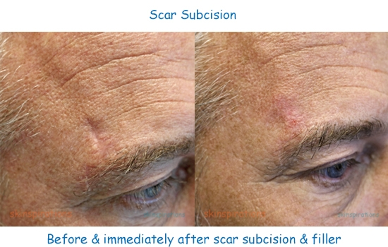 Photos illustrating scar best treated with subcision