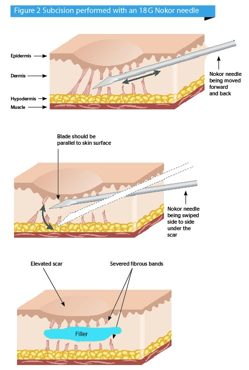 Diagram illustrating scar