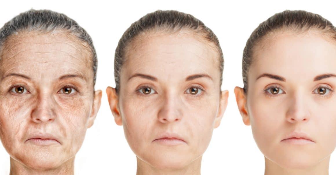 facial aging morph photos lines spots