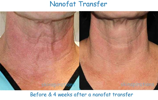 Nanofat contains stem cells to help aging, crepey skin look younger, but has minimal downtime.