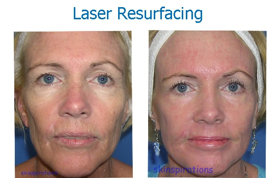 before after laser skin resurfacing wrinkles damage