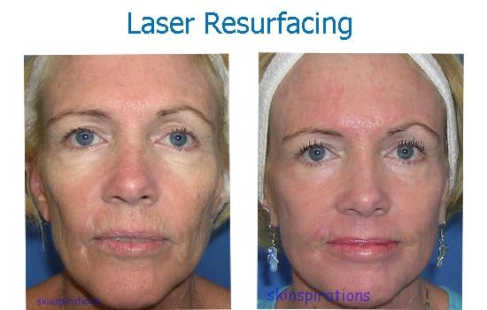 before after laser skin resurfacing wrinkles damage