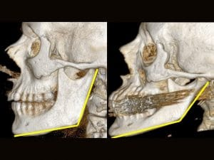 Bone loss with aging in jaws, cheeks and eyes.