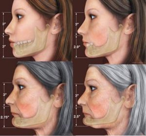 Jowls form when facial bones shrink with age