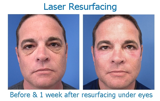 before and after full laser resurfacing under eyes