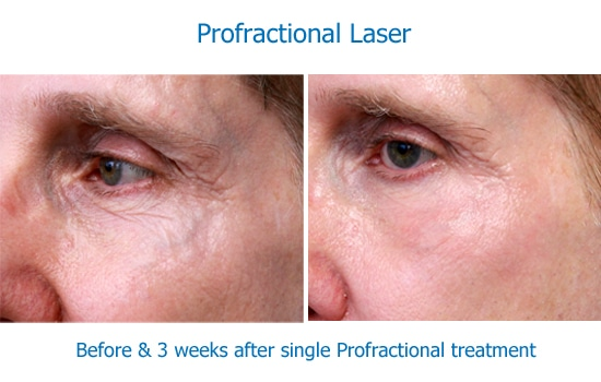 before and after Profractional laser to eye wrinkles