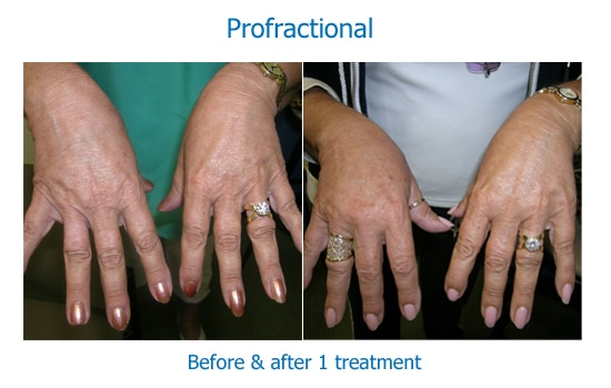 before and after profractional laser to hands