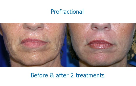 before and after Profractional laser for wrinkles around mouth
