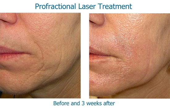 before and after Profractional laser to wrinkles near mouth
