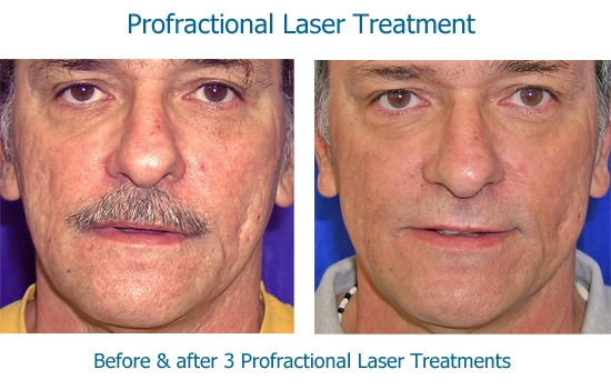 before and after Profractional laser for acne scars