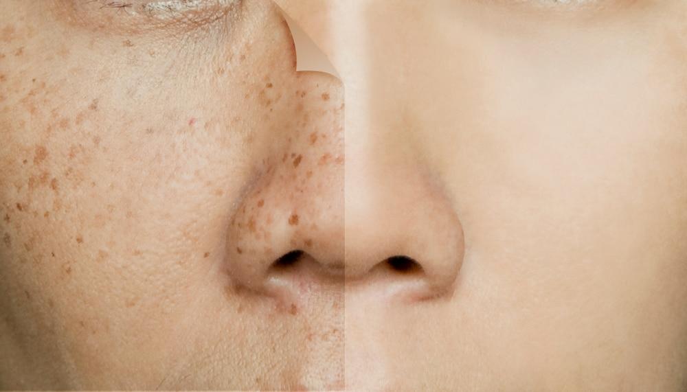 facial spots freckles