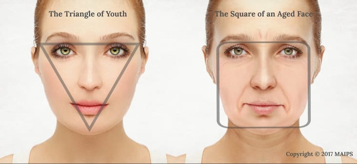 Change in facial shape with aging