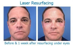 laser resurfacing smooths wrinkled skin under eyes