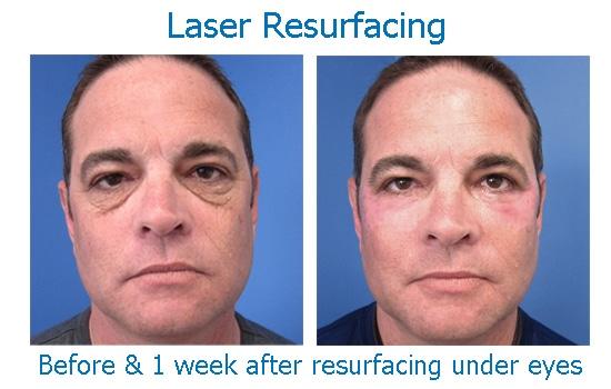 laser resurfacing smooths wrinkled skin under eyes