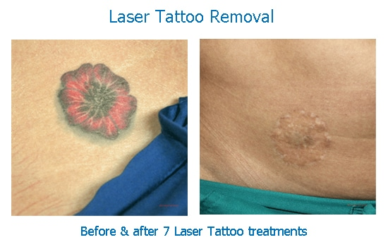 before and after photos of tattoo removal at skinspirations