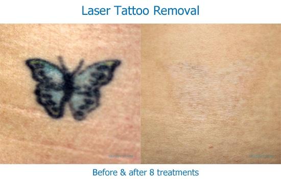 laser tattoo removal blue black tattoo