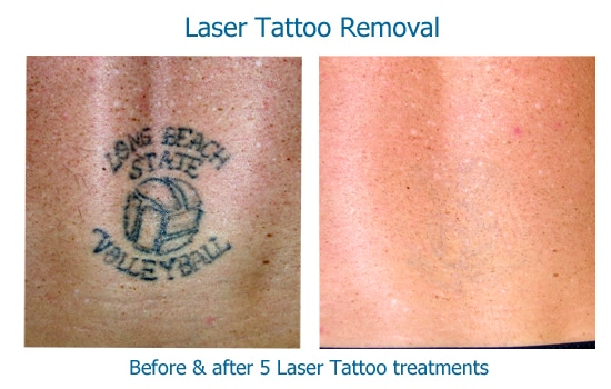 before and after photos of laser tattoo removal results at skinspirations