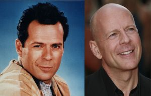bruce willis showing that hair loss doesn't hurt attractiveness