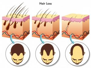 diagrams illustrating the changes in hair follicles and blood supply with male pattern baldness