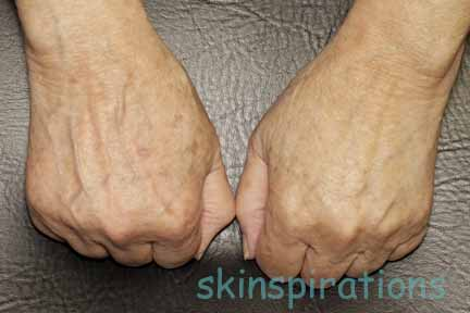 Bony, veiny hands can be improved with dermal filler