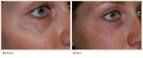 Veins under the eyes causing dark circles