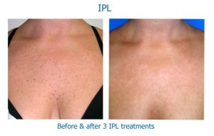 IPL removes spots on the skin as seen on the chest here