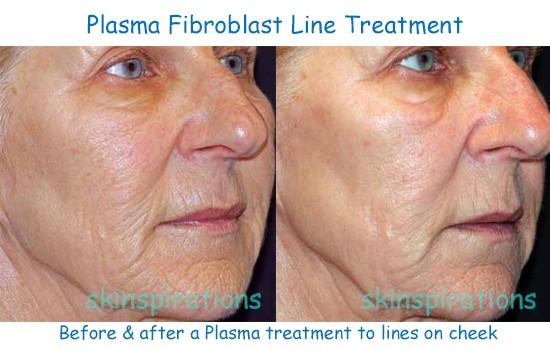 Plasma fibroblasting erases fine lines