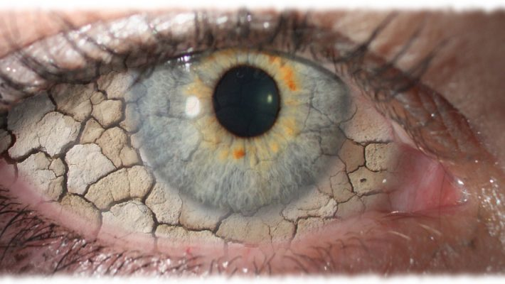 Zap Away Dry Eyes, Tighten Crepey Skin Anywhere & 5 Tips to Look Better Online