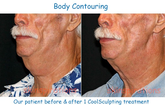 Double chin fat reduction with Coolsculpting